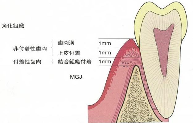 角化組織の断面図。非付着性歯肉は歯肉溝1mmの下に上皮付着1mm。付着性歯肉は結合組織付着1mm。
