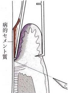 歯肉切除術1