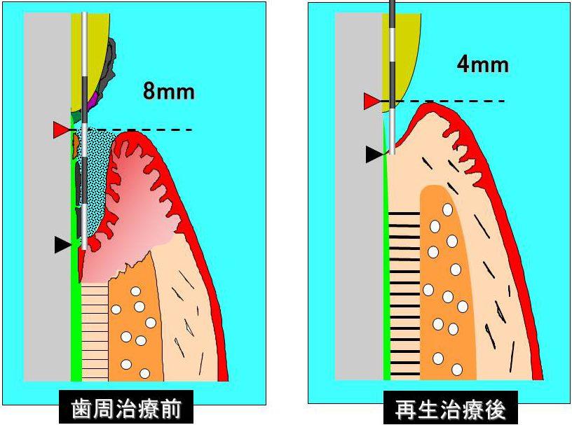 ポケットデプス 左:歯周治療前(8mm) 右:再生治療後(4mm)