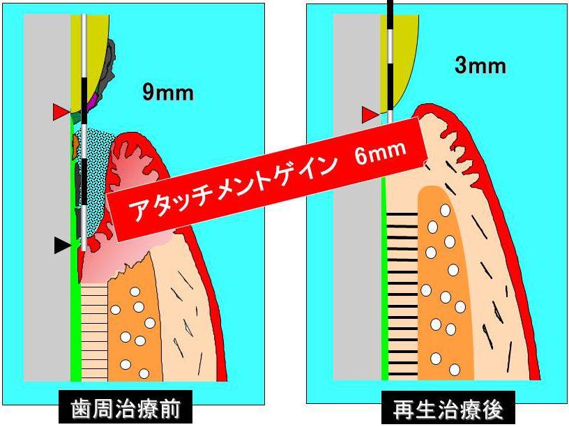 アタッチメントレベル 左:歯周治療前(9mm) 右:再生治療後(3mm) アタッチメントゲイン 6mm