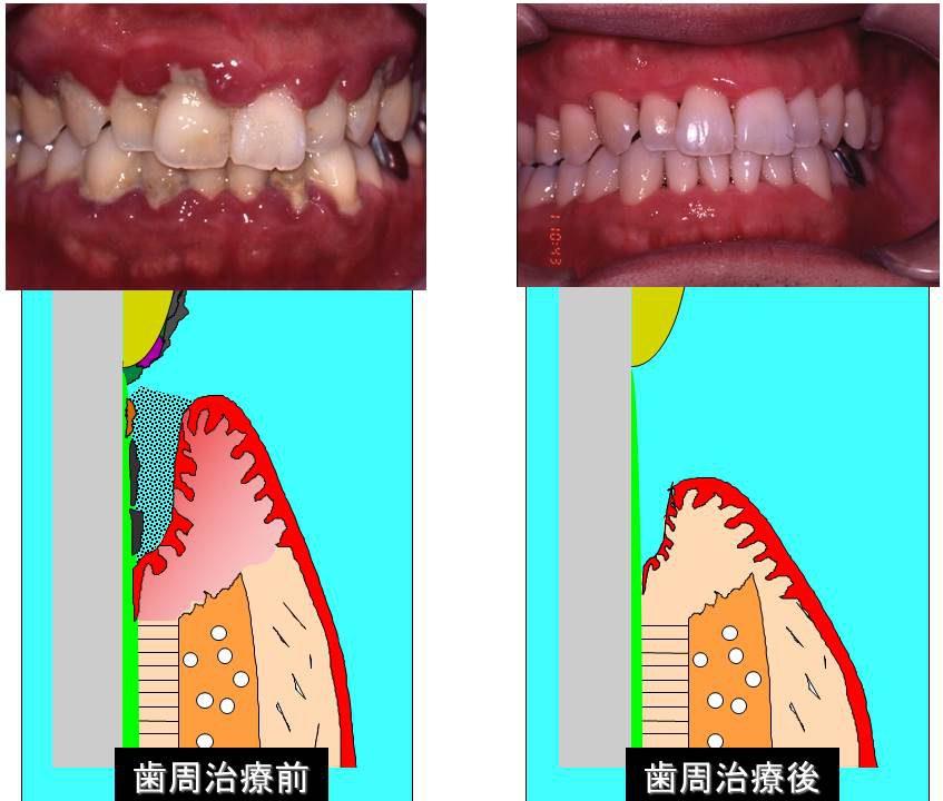 左:歯周治療前 右:歯周治療後