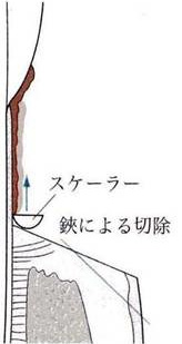 歯肉切除術2