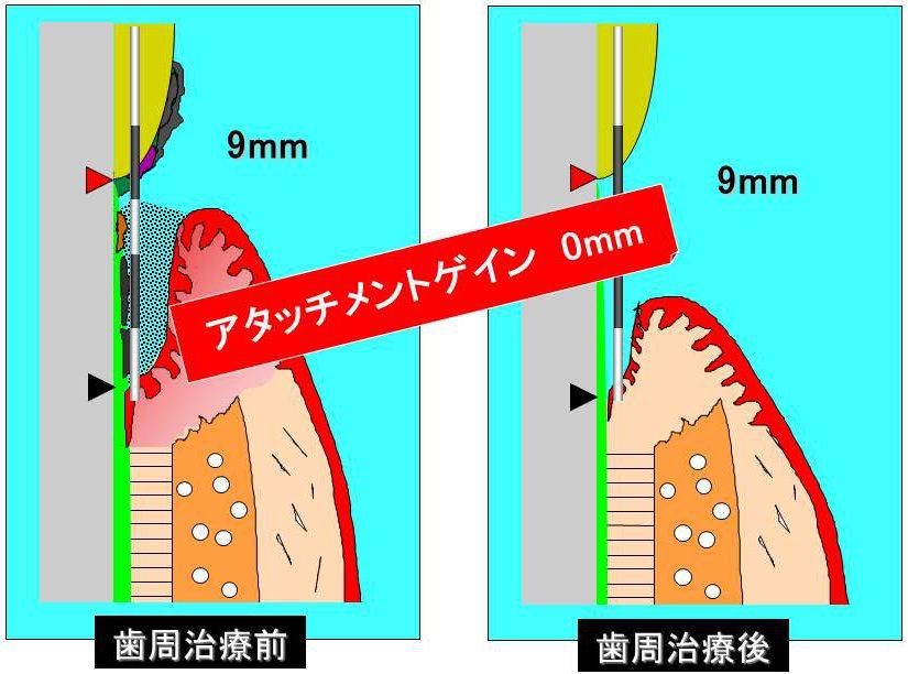 アタッチメントレベル 左:歯周治療前(9mm) 右:歯周治療後(9mm) アタッチメントゲイン 0mm