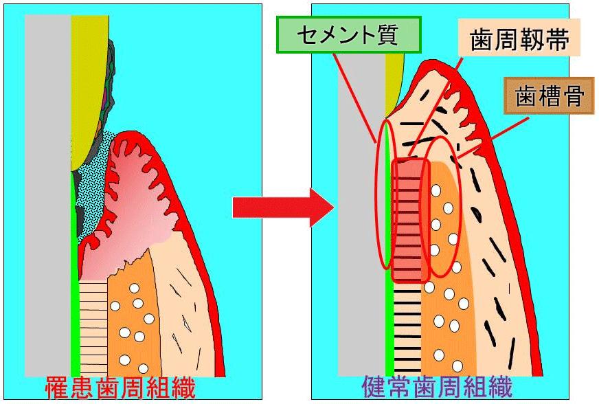 罹患歯周組織(左)→健常歯周組織(右)