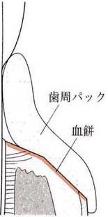 歯肉切除術3