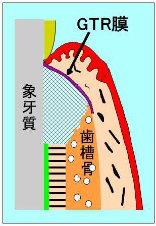 GTR膜の図