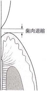 歯肉切除術4