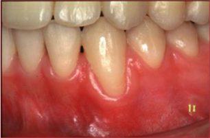 歯肉退縮の診査-2