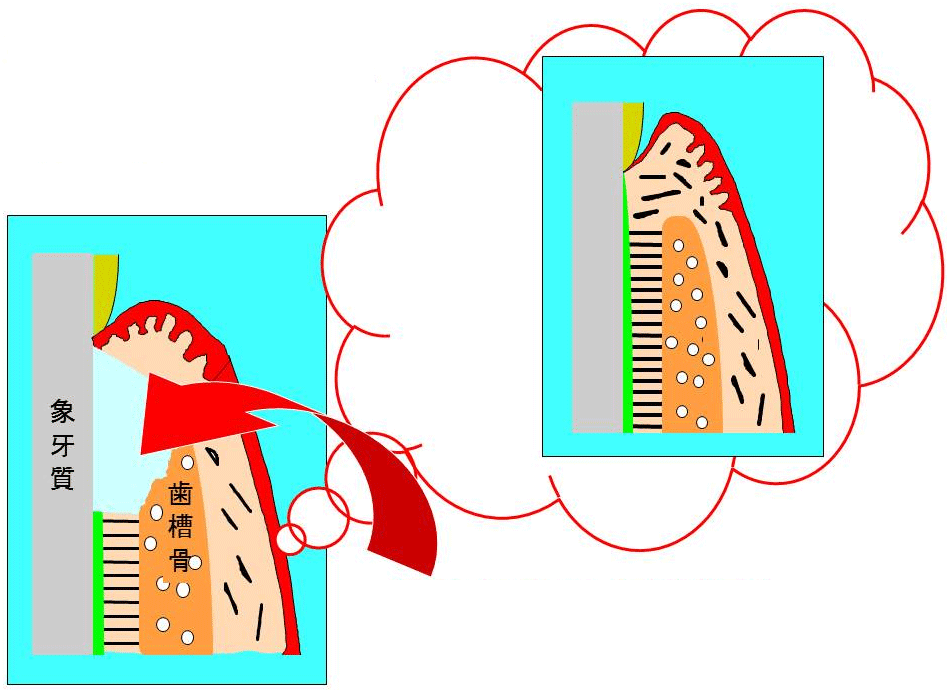 歯周組織を再生させるためには何らかの工夫が必要