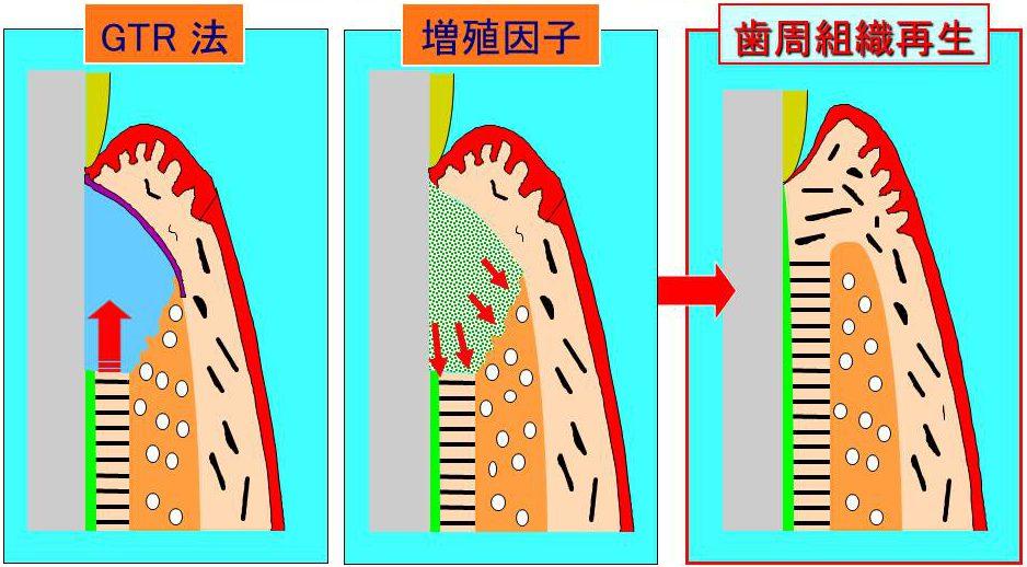 GTR法(左) 増殖因子(中央)→歯周組織再生(右)