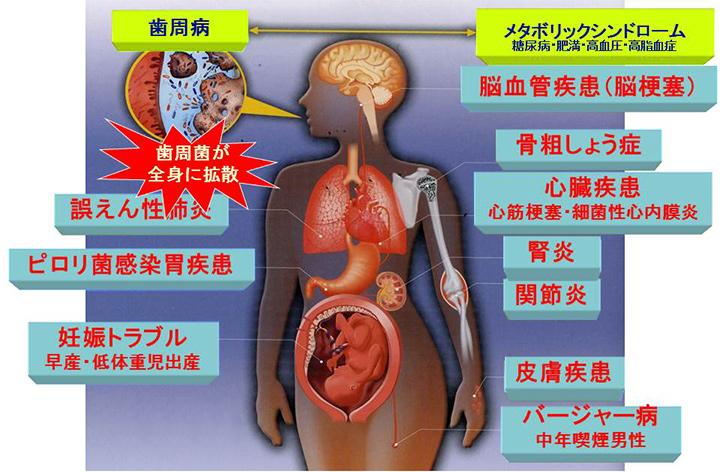歯周病が関わる全身疾患の図