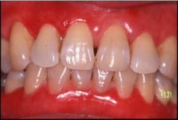 慢性剥離性歯肉炎
