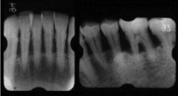 慢性歯周炎(成人性歯周炎)57歳 男性
