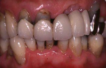慢性歯周炎(一般的)