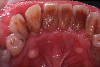 慢性歯周炎(一般的、縁上歯石)