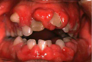 薬物性歯肉増殖症 抗痙攣薬による