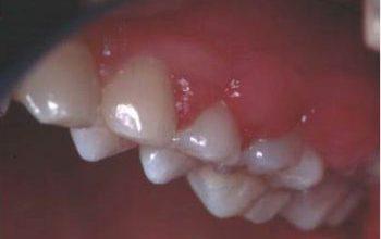 薬物性歯肉増殖症 免疫抑制薬(シクロスポリン)による