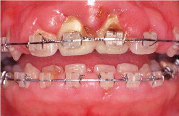 歯肉増殖症(矯正治療開始後約1年 口腔性清掃不良による)