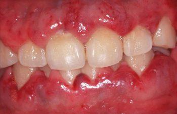 白血病性歯肉炎
