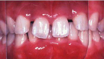 限局型侵襲性歯周炎 16歳 女性