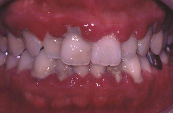 プラーク性歯肉炎(重度)