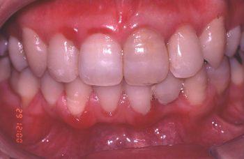 プラーク性歯肉炎(歯石の存在)