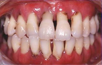 歯周病の歯肉