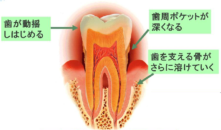歯が動揺しはじめる。歯周ポケットが深くなる。歯を支える骨がさらに溶けていく。
