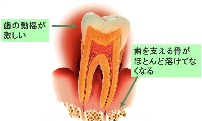 歯の動揺が激しい。歯を支える骨がほとんど溶けてなくなる。