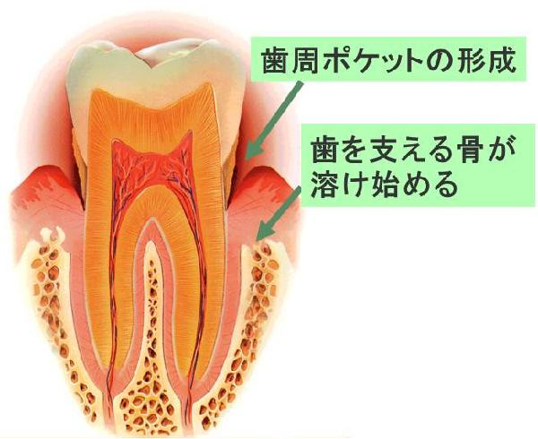 歯周ポケットの形成。歯を支える骨が溶け始める。