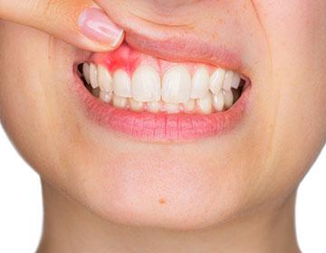 歯周炎を気にしている人のイメージ写真
