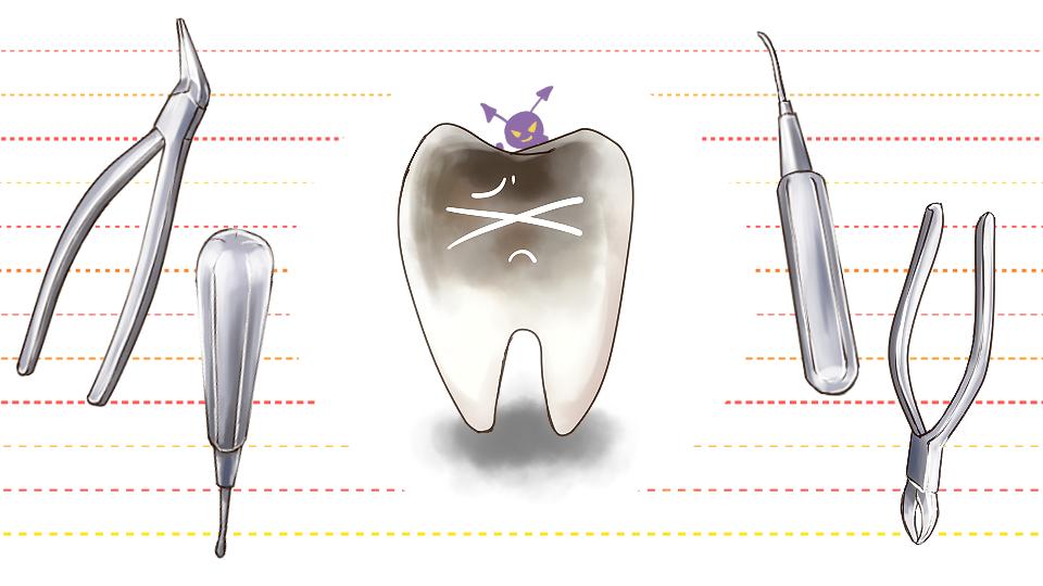 虫歯の歯と抜歯の道具(ペンチやトンカチなど)のイメージ画像