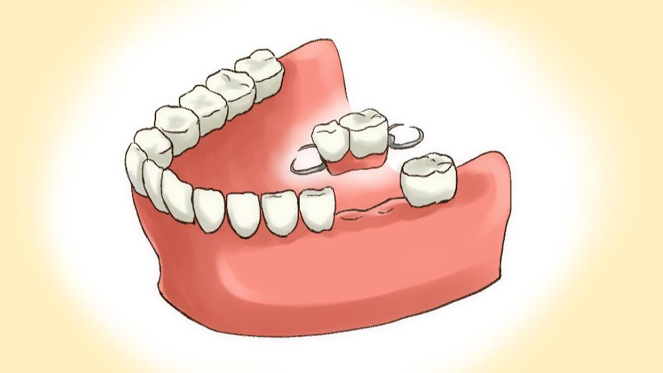 部分入れ歯のイメージイラスト