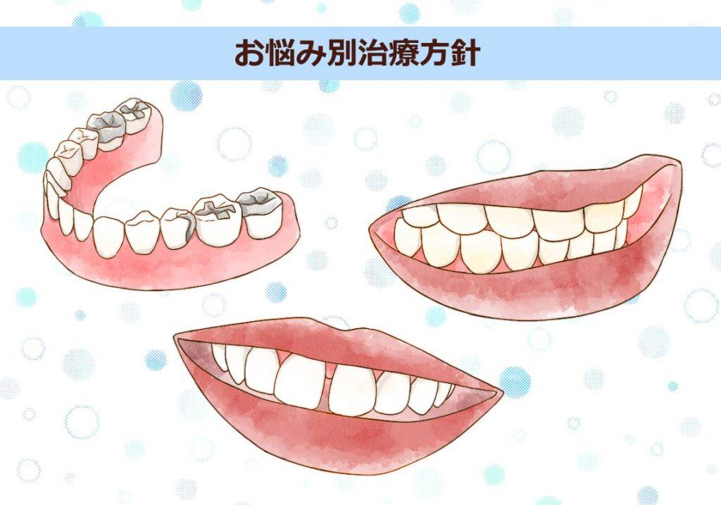 口元や歯のイラスト