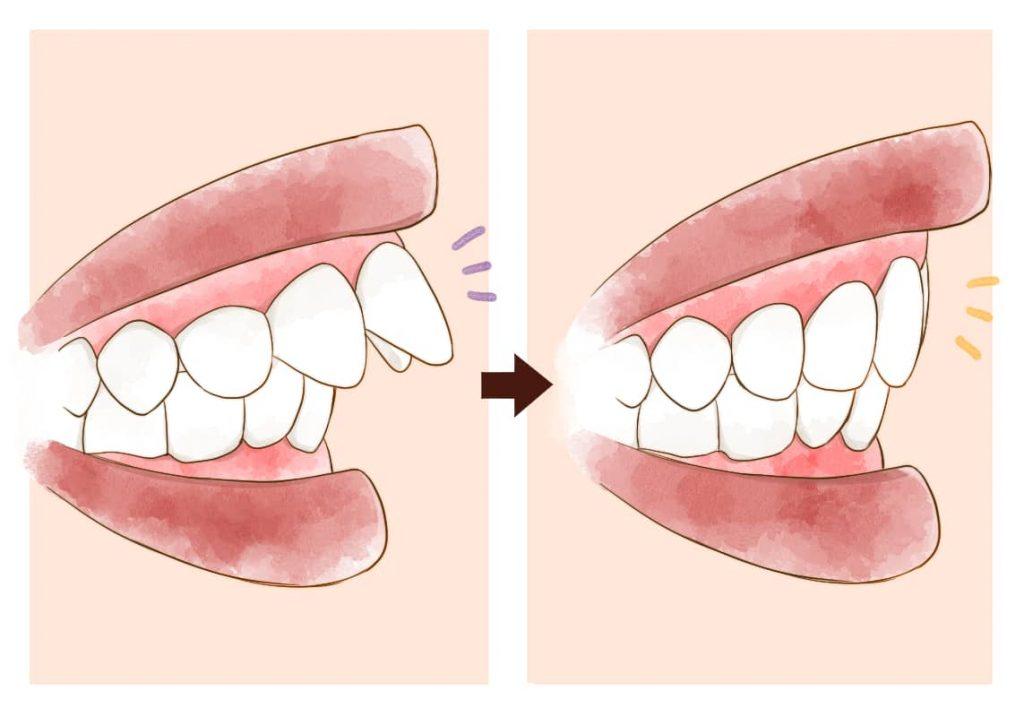セラミック治療前と後のイメージイラスト