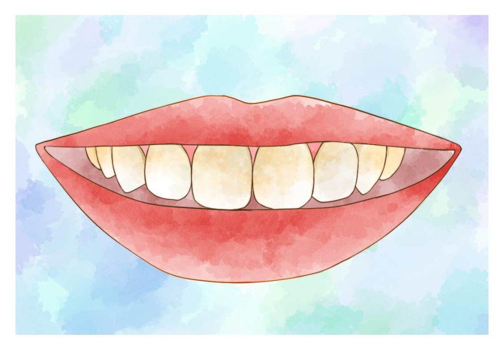 前歯のイラスト