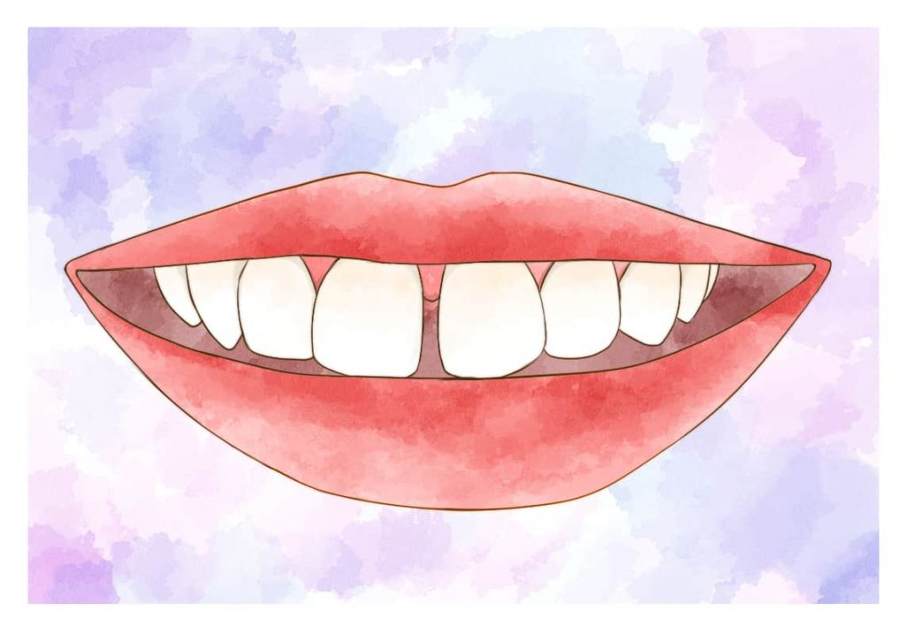 隙間のある前歯のイラスト