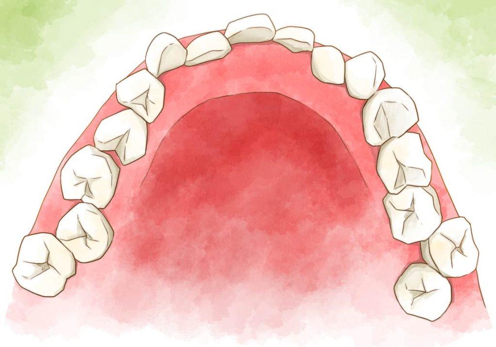 奥歯の歯並びが悪いイメージイラスト