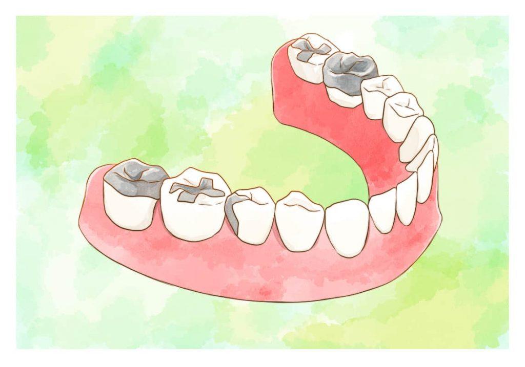 銀歯のイラスト