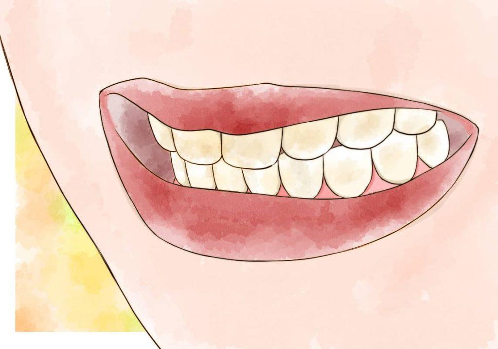 着色した歯のイラスト
