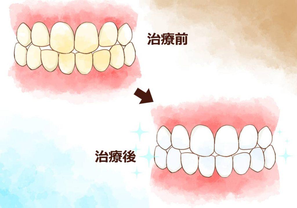 ホワイトニング治療前と後のイメージイラスト