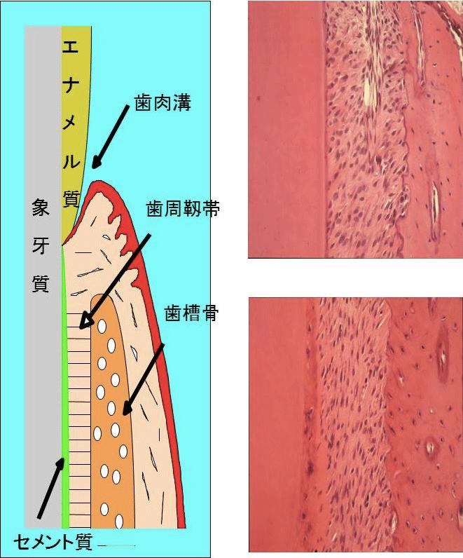 歯肉を顕微鏡で組織学的に見た図(左)と写真(右)